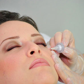 carboxiterapia-facial